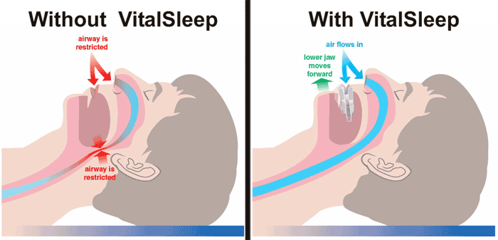 how vital sleep works
