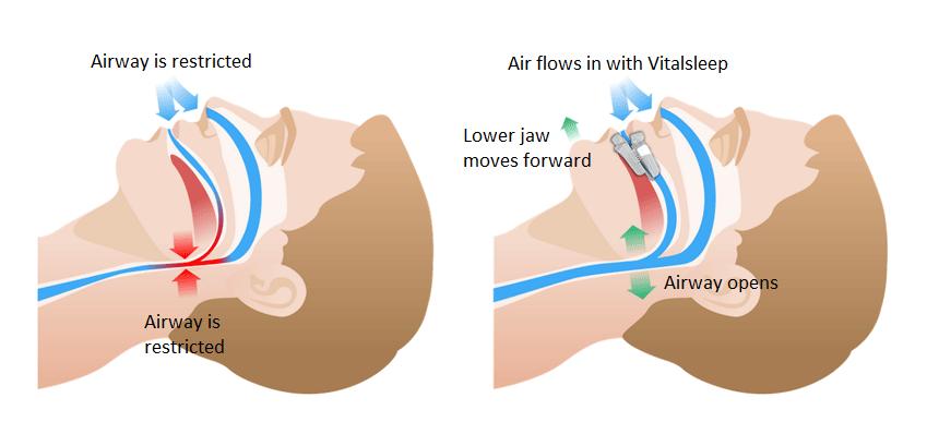 vital sleep - how it works