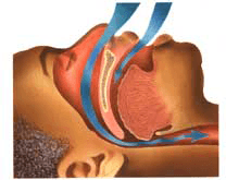understand the causes to know how to stop snoring